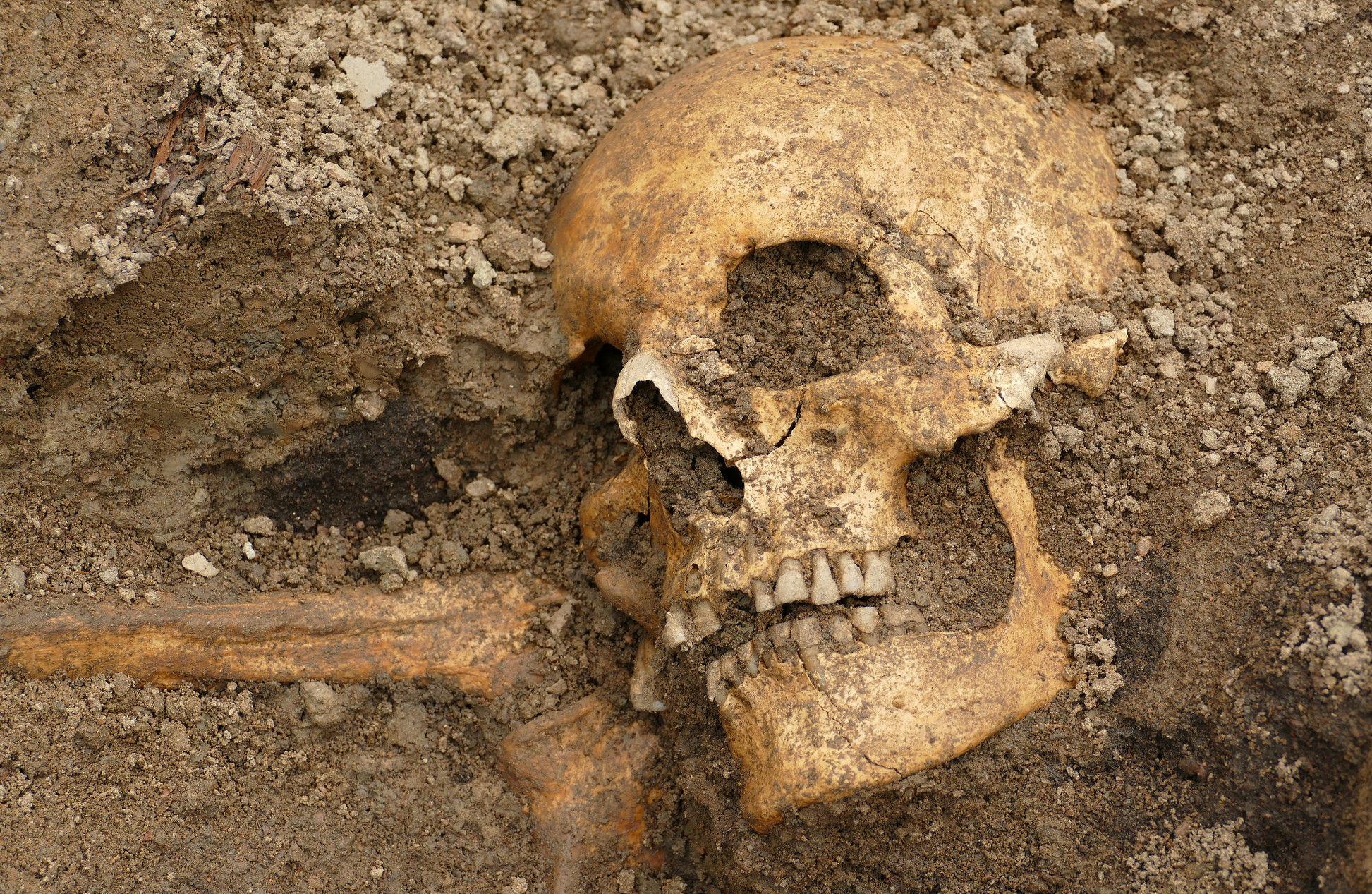 Remains of a man