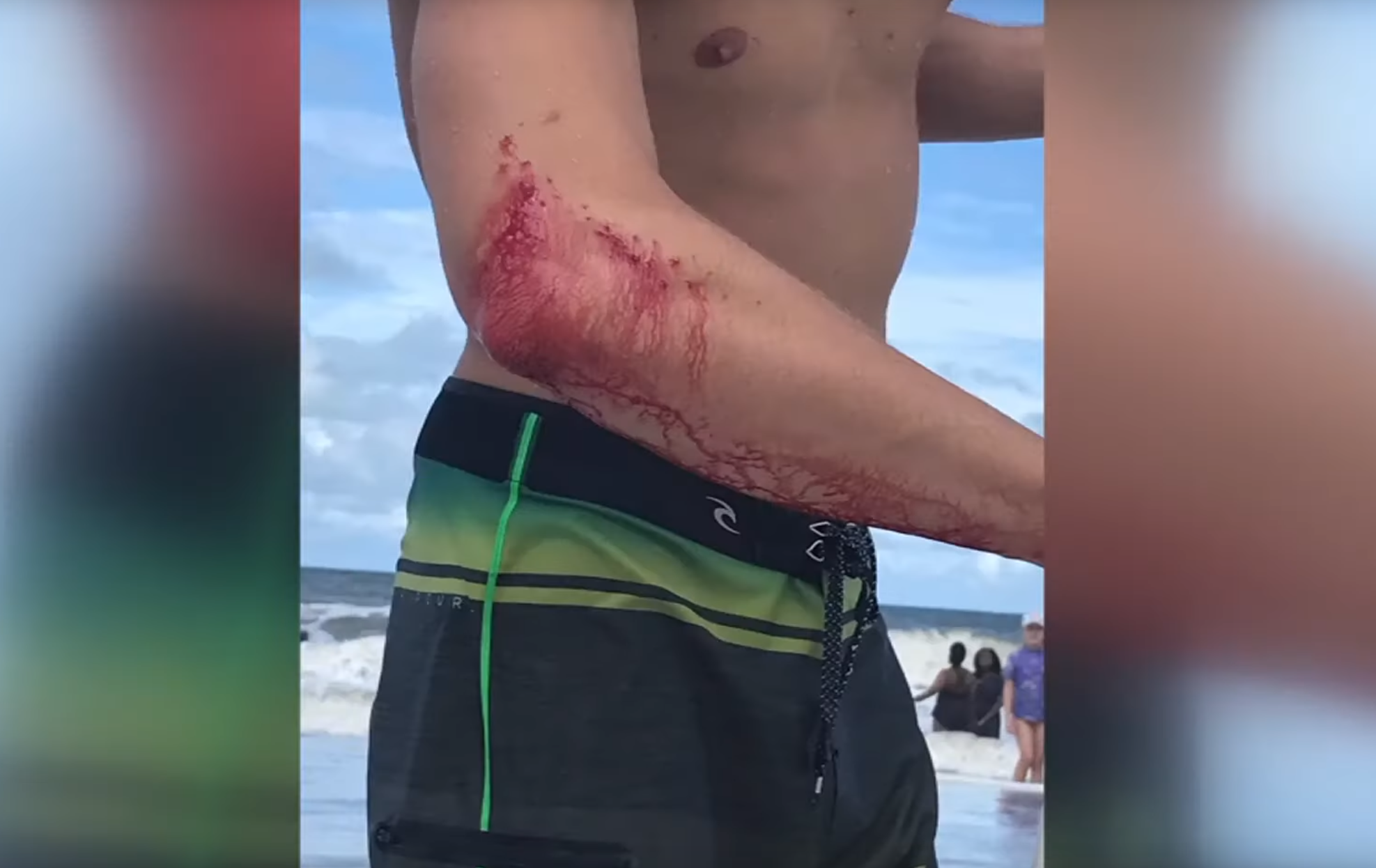 Arm of  Franklyn O'Rourke, professional surfer bitten by a shark on July 27, 2019.