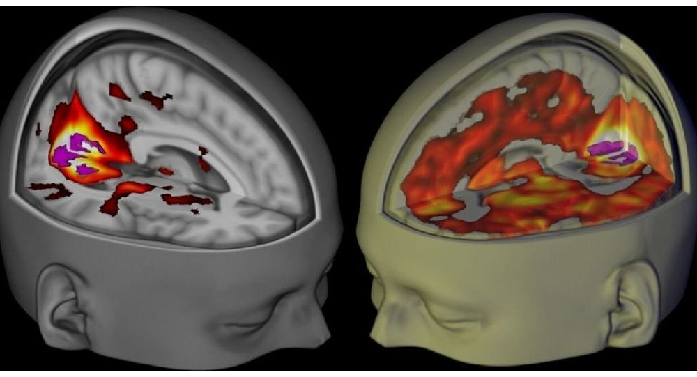 Handout shows the brains of subjects lying awake with their eyes closed, under a placebo and the drug LSD, when being examined using functional MRI.