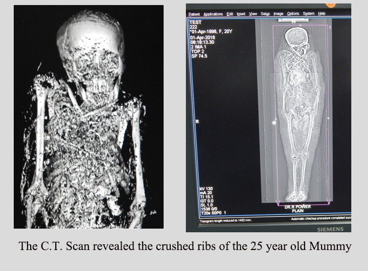 The C. T. scan of the Mummy