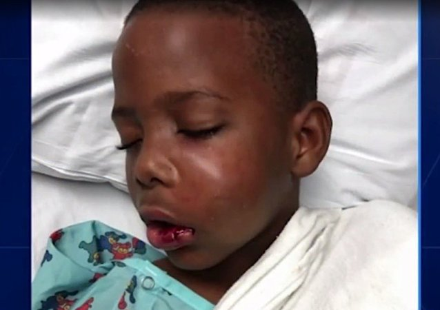 Trayvon Grayson in the hospital after a tutor at his school broke his jaw