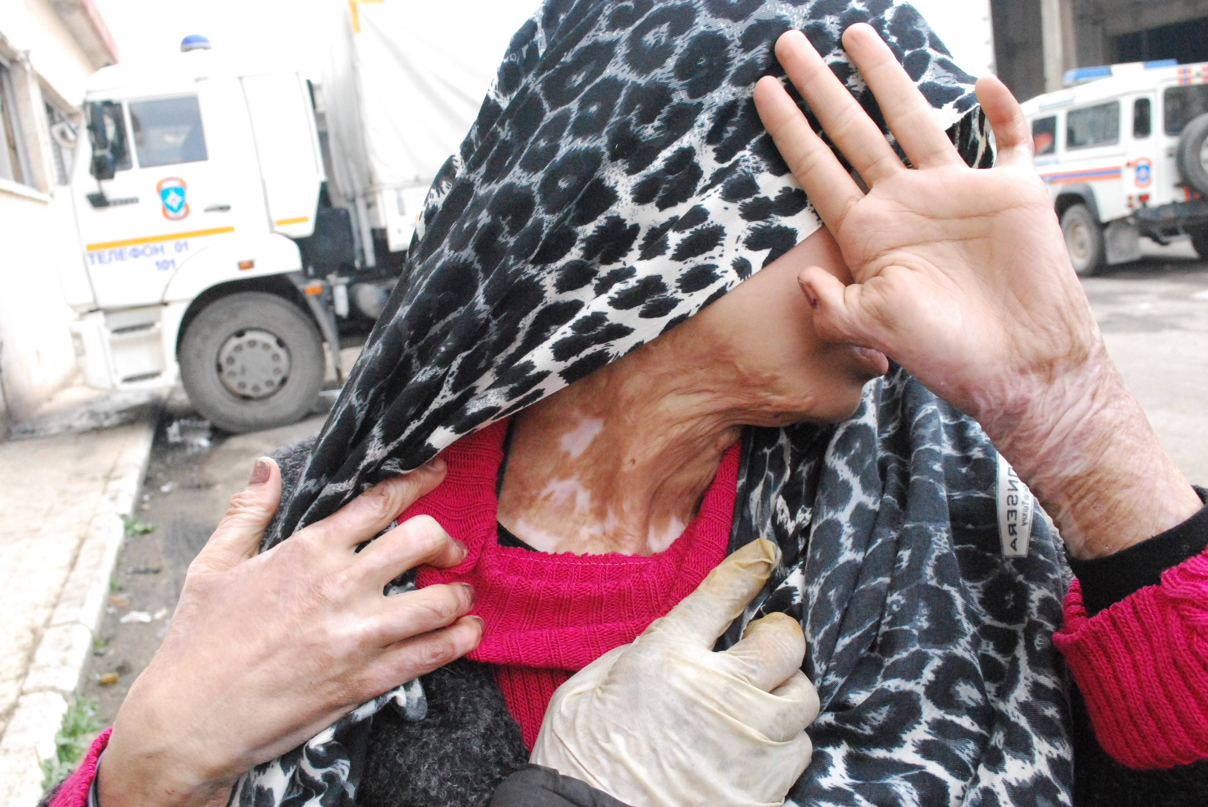 Citizen of Aleppo showing her untreated burns