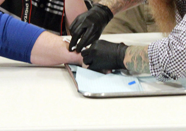 Implanting a microchip