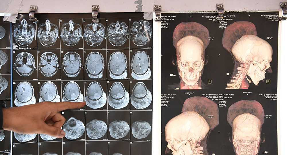 Indian doctor Ramanuj Kabra points to brain scans of Santlal Pal, 31, at the BYL Nair hospital in Mumbai on February 22, 2018