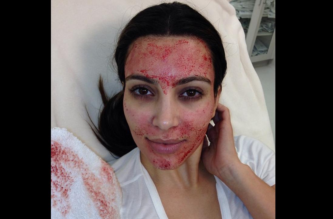 Kim Kardashian, showing off 'vampire facial' in 2013