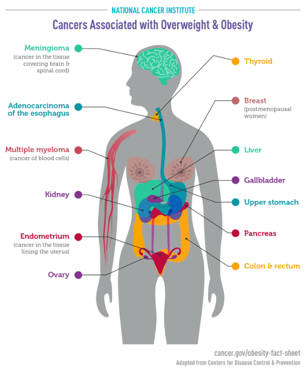 Cancers Associated with Overweight and Obesity infographic from the US National Cancer Institute